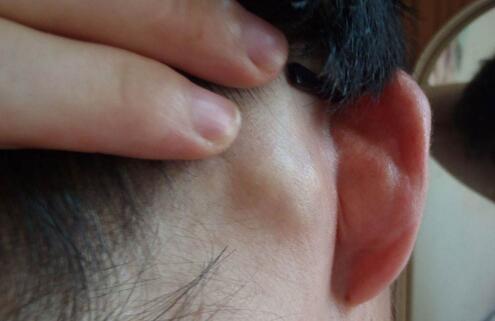 耳朵后面长了个硬包是怎么回事及治疗的方法